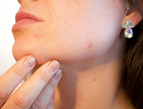 Types of Acne and How to Treat Them Naturally